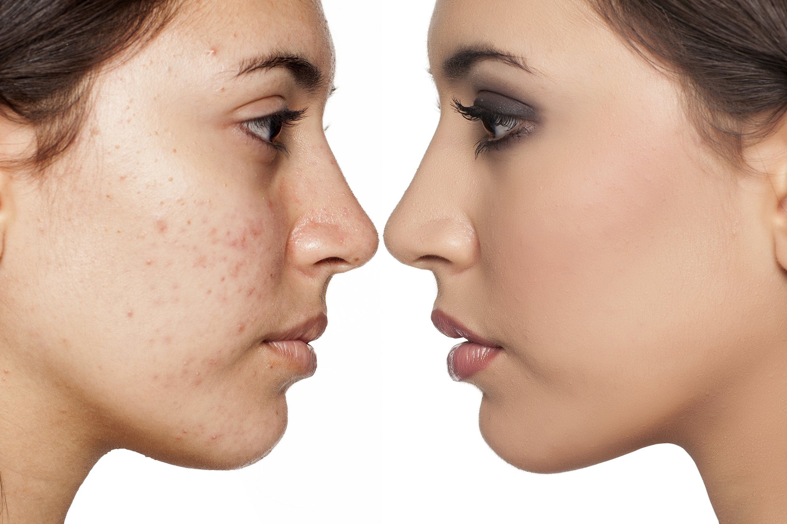 About us acne-2500-1667
